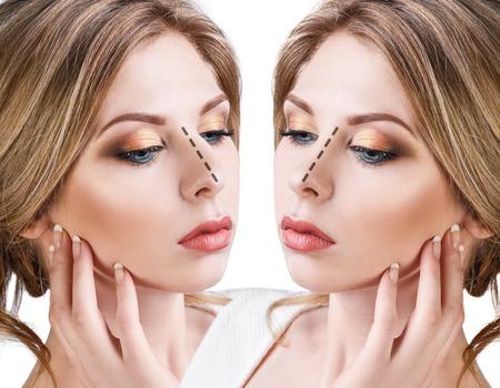 Vrouwelijk gezicht voor en na cosmetische neuschirurgie op witte achtergrond.