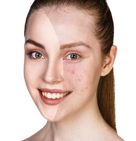Mädchen mit Akne vor und nach der Behandlung Standard-Bild - 71707031