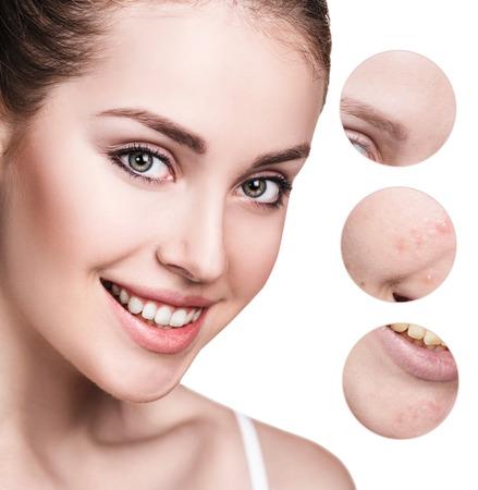 Circles shows problem skin of young woman. 版權商用圖片
