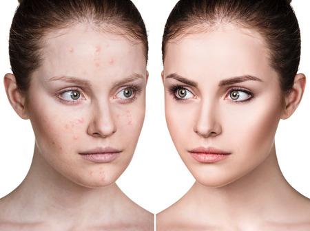 Chica con acné antes y después del tratamiento. Foto de archivo