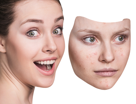Young woman puts away mask with bad skin.