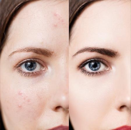 Vrouw met probleemhuid op haar gezicht Stockfoto