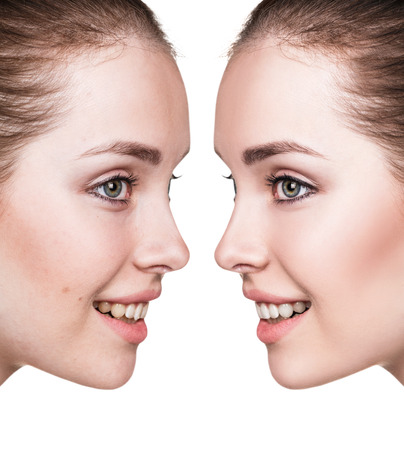 no teeth smile: Young woman before and after retouch. Stock Photo