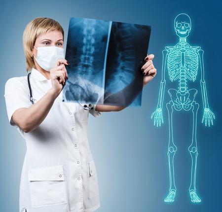 Médico mirando una radiografía.