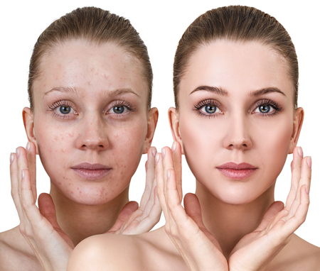 Kobieta przed i po leczeniu i makijażu.