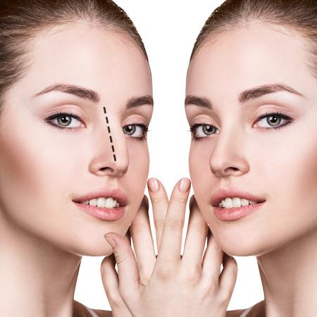 Vrouwelijke neus voor en na cosmetische chirurgie.