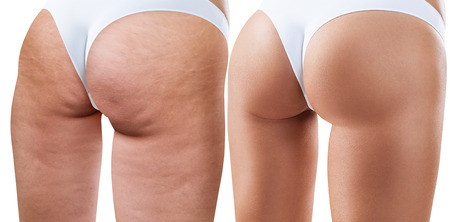 Weibliche Gesäß vor und nach der Behandlung. Standard-Bild - 80054002