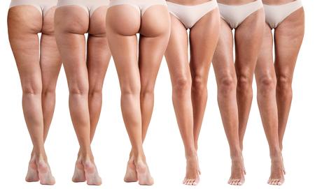 여성 엉덩이 치료 전후.