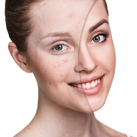 Meisje met acne voor en na behandeling