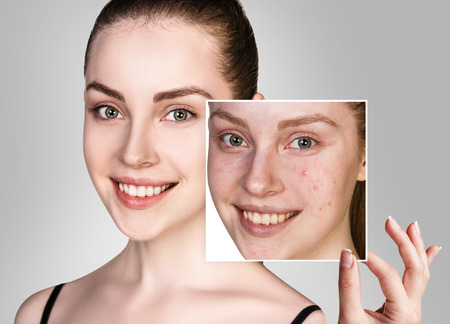 Woman shows photo with bad skin before treatment. Stockfoto