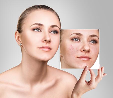 Femme montre une photo avec une mauvaise peau avant le traitement. Banque d'images - 82193585