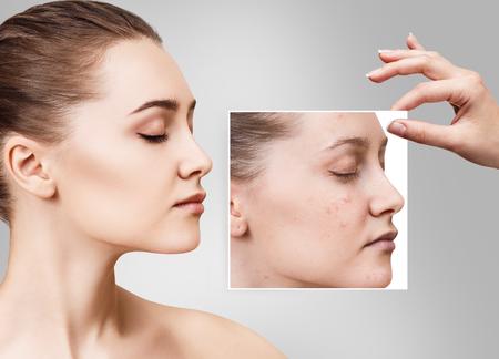 여자는 치료하기 전에 나쁜 피부와 사진을 보여줍니다.