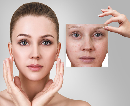 Woman shows photo with bad skin before treatment. Stock Photo