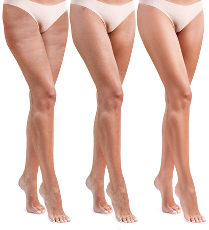 Woman legs before and after treatment.