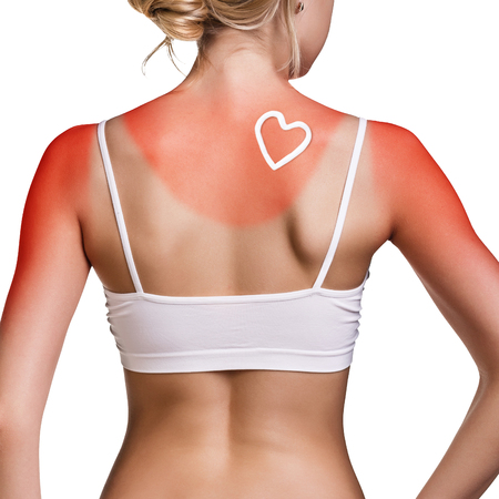 Sunblock on the female shoulder. Stock Photo