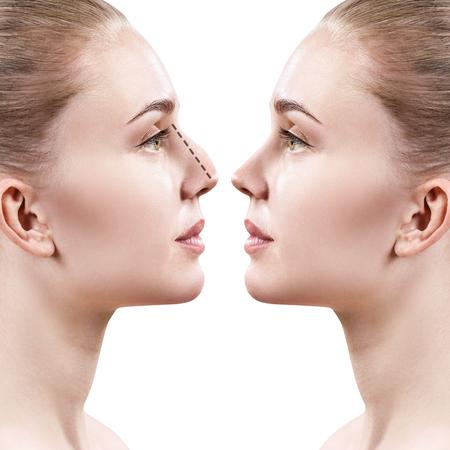 성형 수술 전후의 여성 코.
