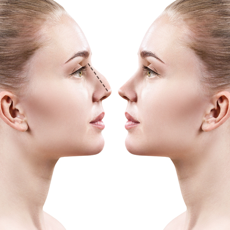 Female nose before and after cosmetic surgery. Archivio Fotografico