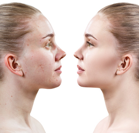 Woman with problem skin. Before and after