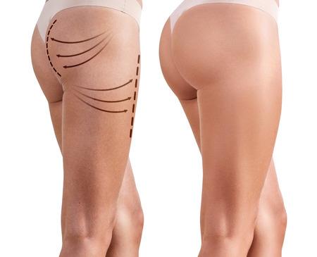 Nádegas da mulher antes e depois da cirurgia plástica Foto de archivo - 84429036