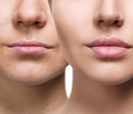 Lips of young woman before and after augmentation Stock fotó - 84429040