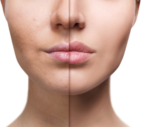 Lips of young woman before and after augmentation