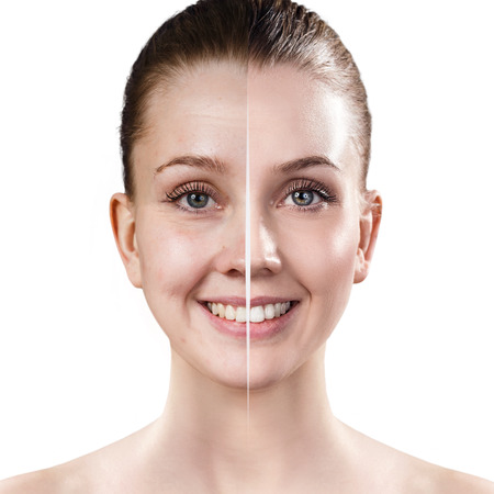 Womans face before and after rejuvenation. Imagens - 84428931