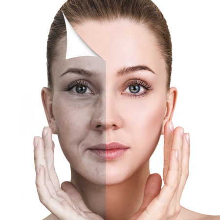 Het gezicht van de vrouw voor en na verjonging.