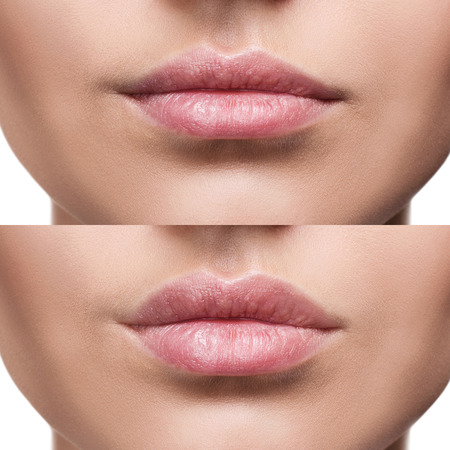 Lips of young woman before and after augmentation Imagens - 84753633