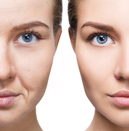 Womans face before and after rejuvenation.