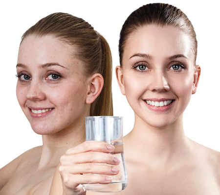 Young before and after cleansing by clear water. Stock Photo