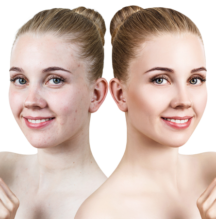 Young woman with acne before and after retouch.