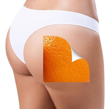 Weibliche Gesäß zeigt Haut vor der Behandlung. Standard-Bild - 84956630