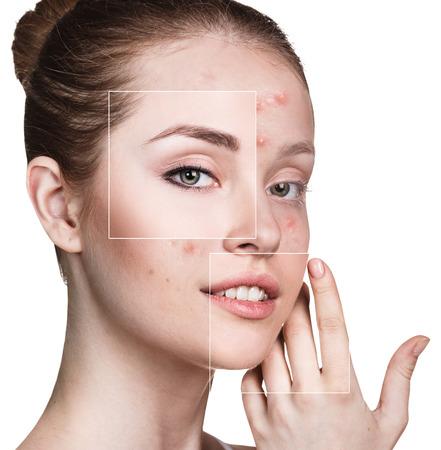 Het gezicht van de vrouw voor en na de behandeling Stockfoto
