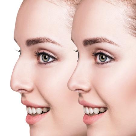 美容整形前と後の女性の鼻
