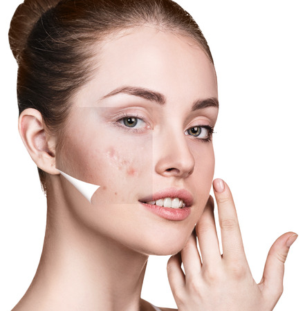 Woman face before and after treatment skin. Stock Photo
