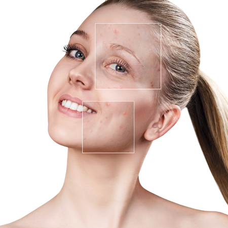 Womans face before and after treatment
