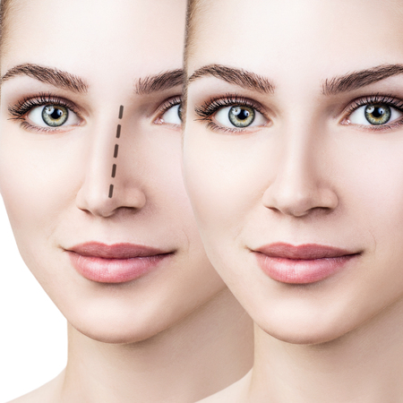Female nose before and after cosmetic surgery Banque d'images