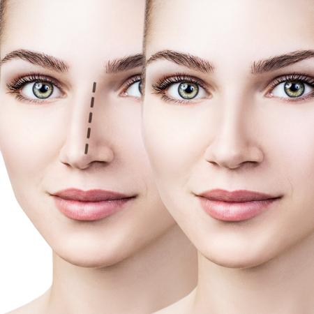 Vrouwelijke neus voor en na cosmetische chirurgie