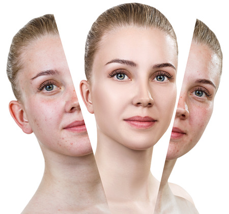 Woman with problem skin. Stock Photo