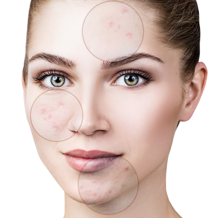 Circles shows problem skin of young woman. Imagens