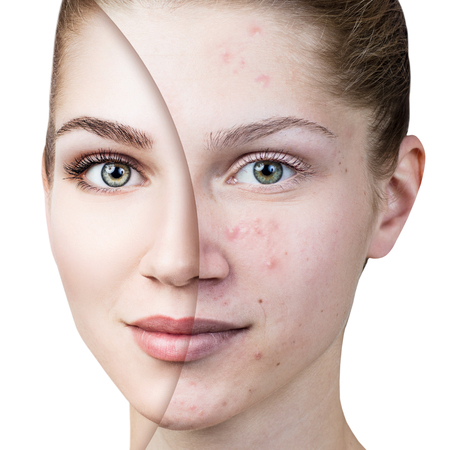 Young woman with acne before and after treatment. 版權商用圖片