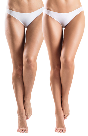 Woman legs before and after treatment skin.