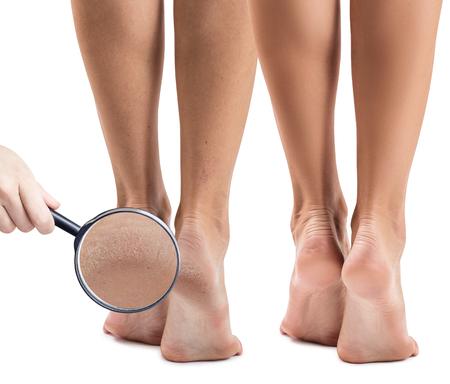 Vrouwelijke voeten met een droge huid en scheuren voor en na de behandeling. Zoom in door vergrootglas. Geïsoleerd op witte achtergrond Stockfoto