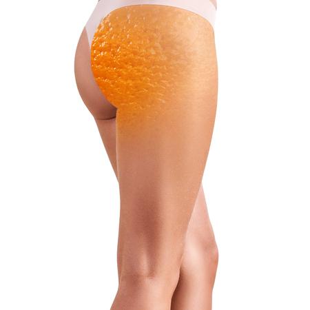 Vrouwelijke billen met sinaasappelschiltextuur.