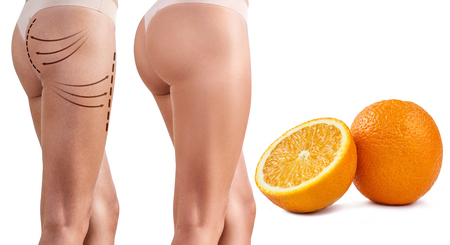Female buttocks before and after plastic surgery