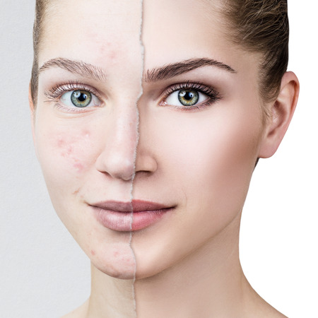 Compare of old photo with acne and healthy skin. 写真素材