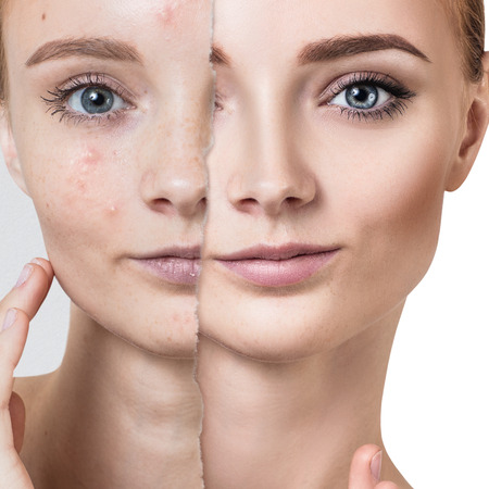 Compare of old photo with acne and healthy skin. 版權商用圖片