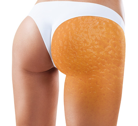 Female with orange peel texture.