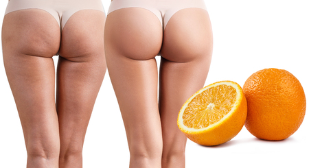 Female buttocks before and after treatment.
