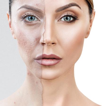 Vergelijk oude foto's met acne en een gezonde huid.